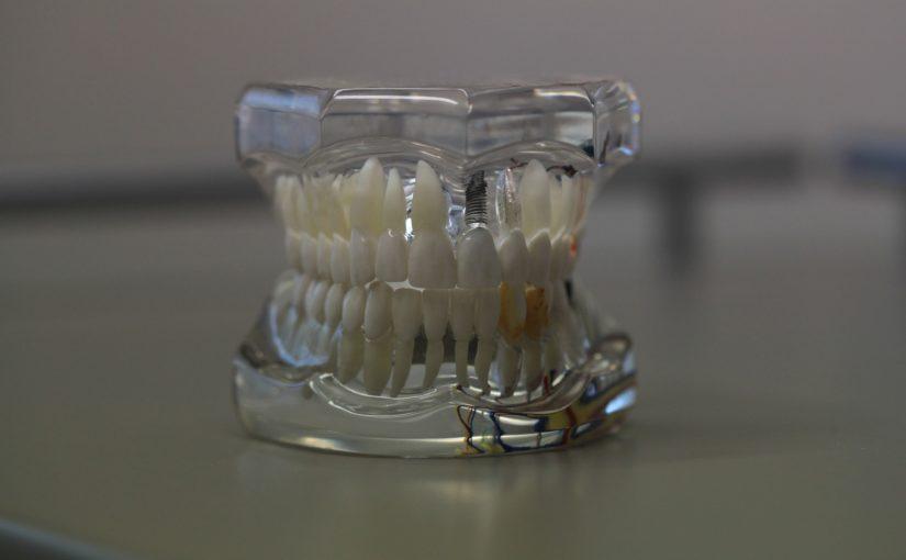 Złe postępowanie odżywiania się to większe ubytki w zębach a również ich brak